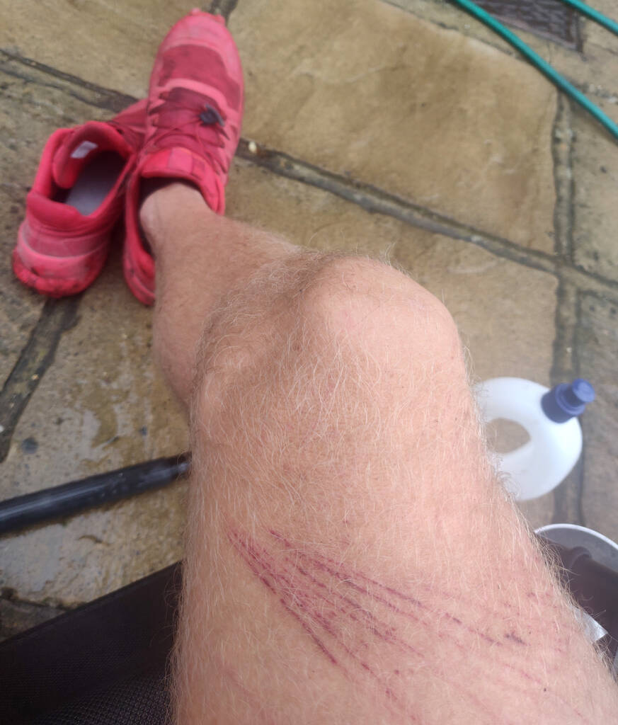 Signs of a great trail run - bramble damage after attempting a bit of a detour on an ultra trail run.